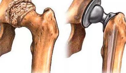 股骨头缺血坏死的MRI表现