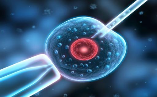 胞浆内精子注射