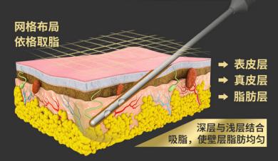 北京星医汇网状递进式分层吸脂BTV专访脂肪名医团队