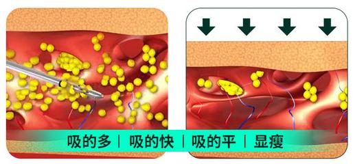 北京星医汇吸脂:将吸脂做到如此专业才称得上精雕